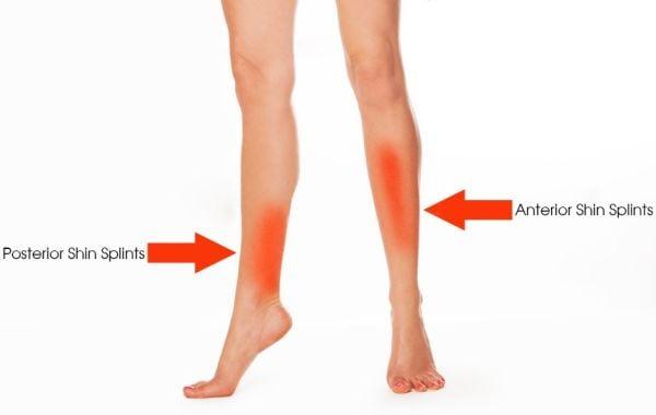 shin splints posterior anterior pain