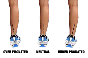 shin splints from walking
