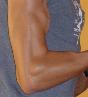 genetic muscular potential