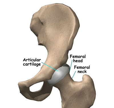 sumo deadlift femur
