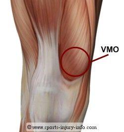 knee pain vmo