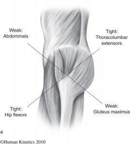 anterior-pelvic-tilt-muscle-imbalance
