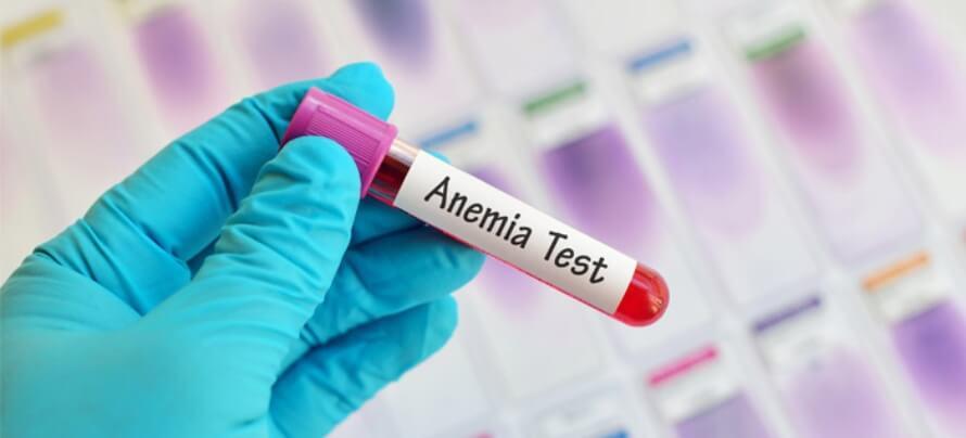 anemia-test (1)