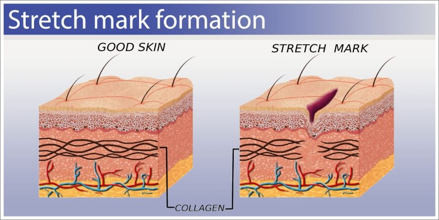 Stretch Marks formation