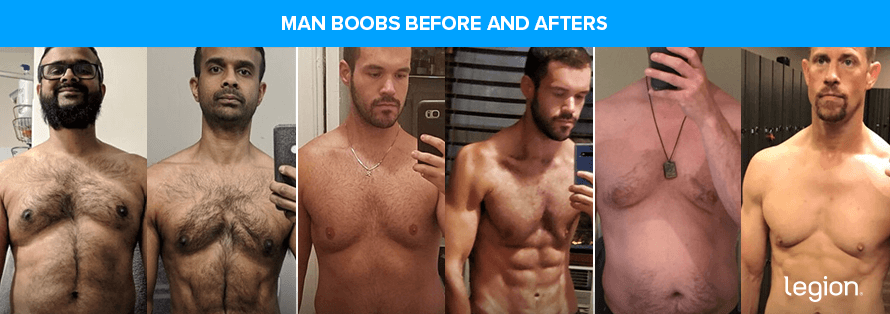 Man Boobs Before and Afters
